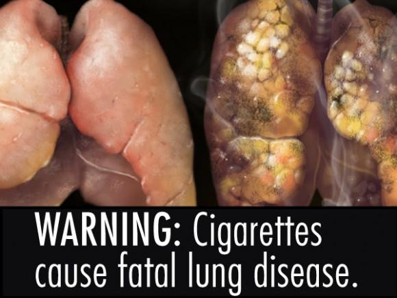 fda-cigarette-warnings-13