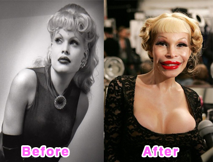 plastic-surgery-disasters-1