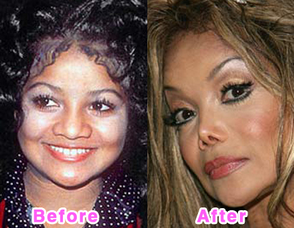 plastic-surgery-disasters-10