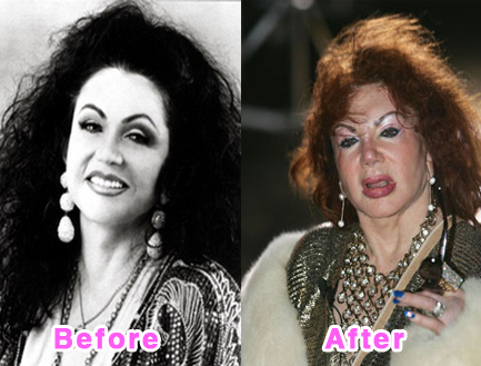 plastic-surgery-disasters-6