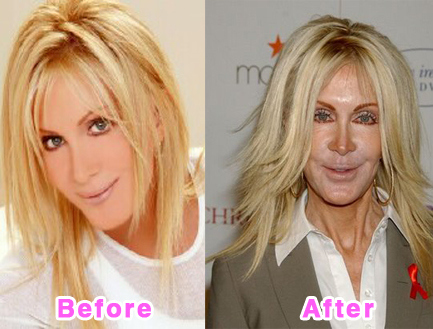 plastic-surgery-disasters-8