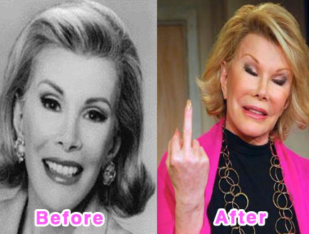 plastic-surgery-disasters-11