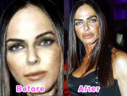 plastic-surgery-disasters-12