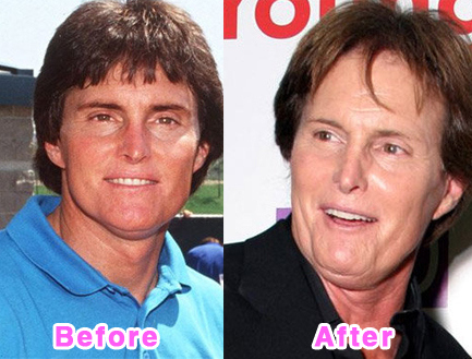 plastic-surgery-disasters-13