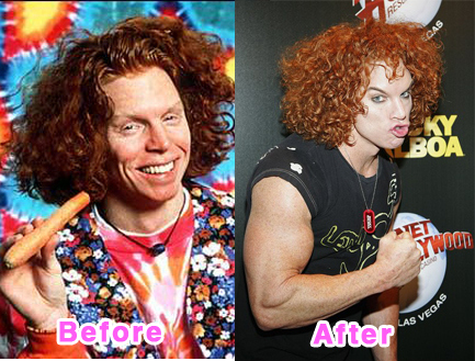 plastic-surgery-disasters-14
