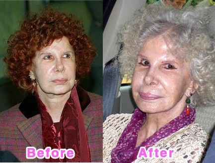 plastic-surgery-disasters-2