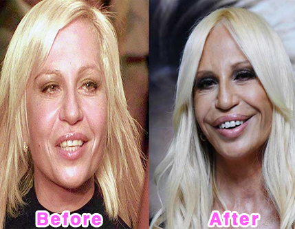 plastic-surgery-disasters-3