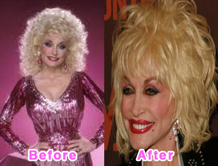 plastic-surgery-disasters-4