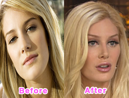 plastic-surgery-disasters-5