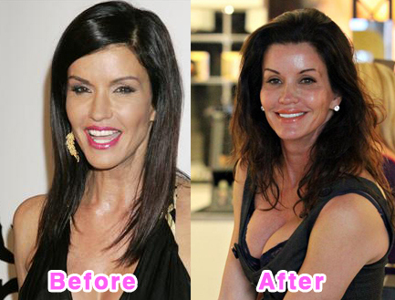 plastic-surgery-disasters-7