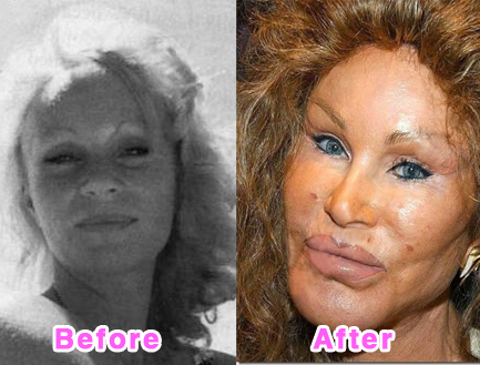 plastic-surgery-disasters-9